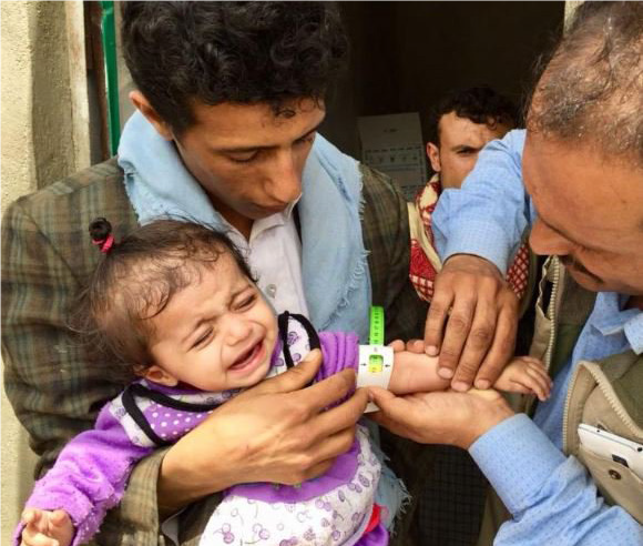"Photo of الأمم المتحدة: 11 منشأة صحية بـ""الحديدة"" اليمنية أوقفت خدماتها"