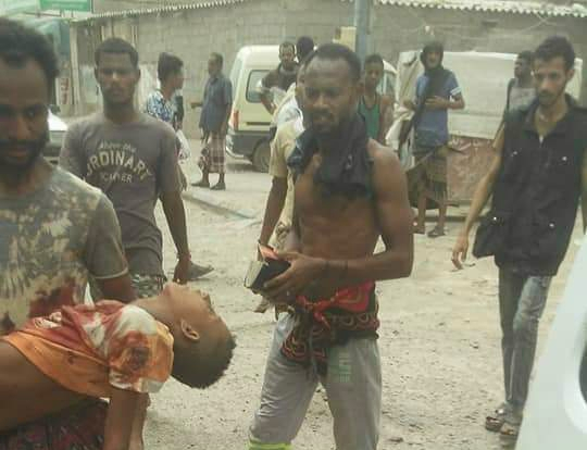 Photo of عشرات القتلى والمصابين من المدنيين جراء المواجهات في أحياء عدن