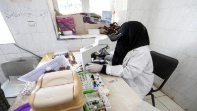 Photo of صحيفة: المختبرات في اليمن غير قادرة على تشخيص الأمراض