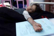 Photo of الأمم المتحدة تخشى من تفاقم سوء التغذية لدى الأطفال في اليمن في ظل تفشي كورونا