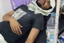 Photo of مليشيا الانتقالي تفرج عن الصحفي أصيل سويد وعليه آثار تعذيب