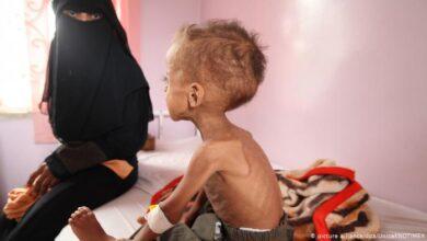 Photo of استمرار سوء التغذية يحصد أرواح المزيد من أطفال اليمن