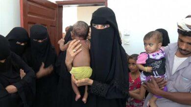 Photo of الأمم المتحدة: ارتفاع حالات سوء تغذية الأطفال باليمن إلى أعلى مستوياتها