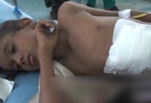 Photo of الحديدة.. مقتل وإصابة 27 مدنياً بنيران الحوثيين منذ بداية نوفمبر الجاري