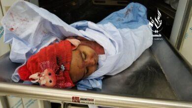 Photo of يونسيف: مقتل 11 طفلاً في اليمن خلال الثلاثة الأيام الماضية